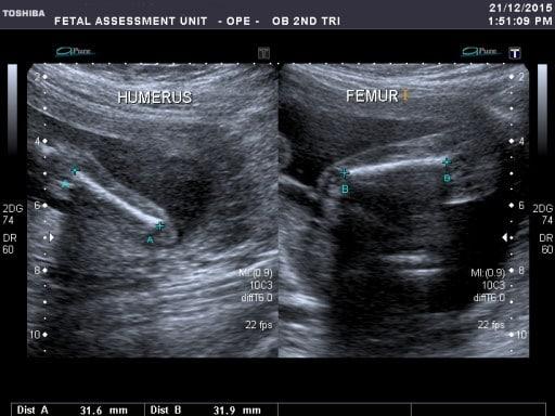 cbb 20 week scan