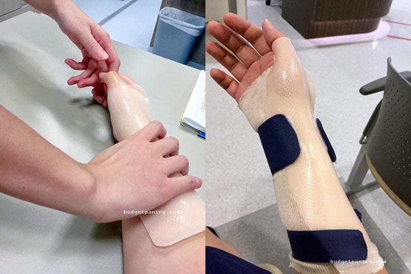 moulding splint