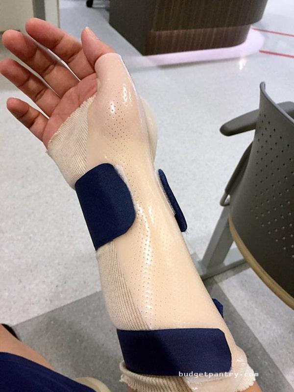 splint1